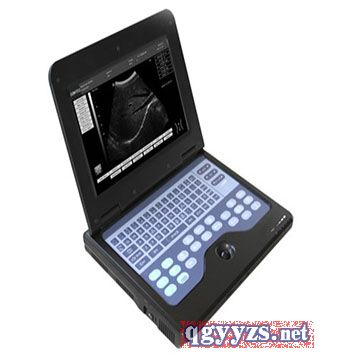 CMS600P2B型笔记本式超声诊断仪/B超机